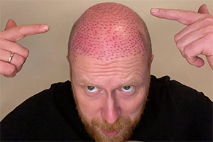 Your Mate Had A Hair Transplant